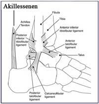 Akillessenebetændelse