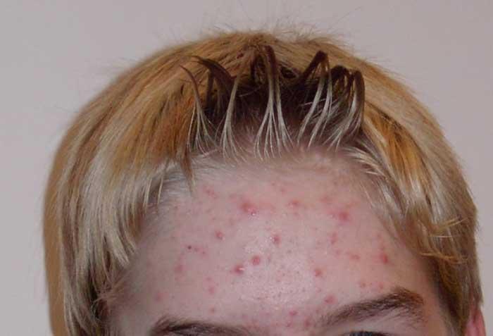talgknopper i ansigtet behandling
