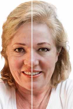 En ansigtsløftning ænder ansigtet