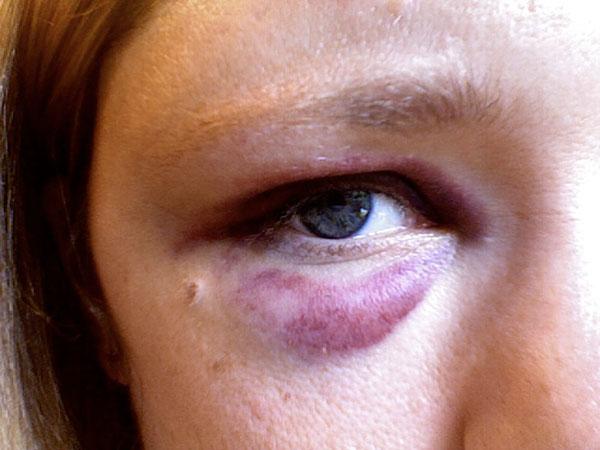 smerter bag øjnene