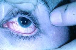 En blodsprængning i øjet hos en patient
