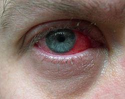Her ses blodsprængte øjne