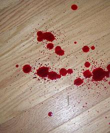 blødning efter samleje