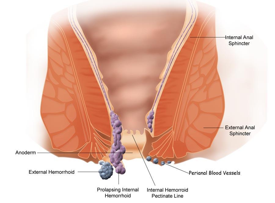 brystforstørrelse blødning ved samleje