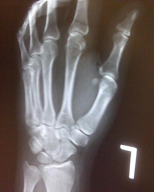 forstuvet tommelfinger behandling