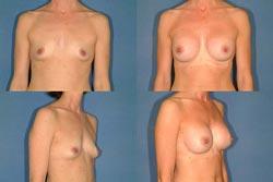 En brystforstørrelse hos en kvindelig patient