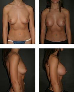 Billeder af en brystforstørrende operation