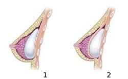 En brystforstørrelse er en brystoperation