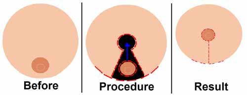 Operationsprocedure for brystreduktion