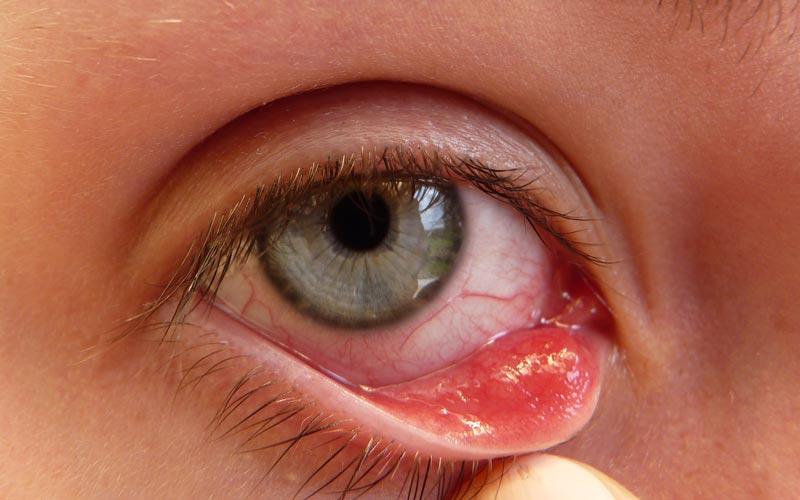 rosacea øjne behandling