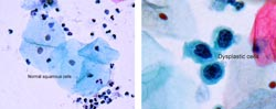 Celleforandringer i underlivet