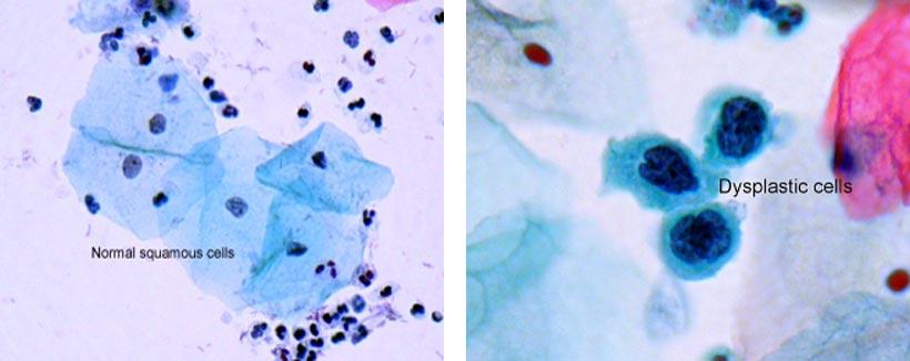 tegn på celleforandringer i underlivet