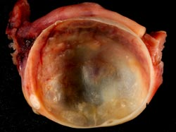 Cyster på æggestokkene