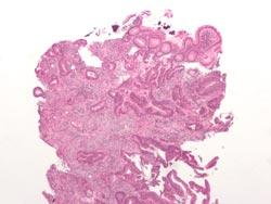 Endetarmskræft