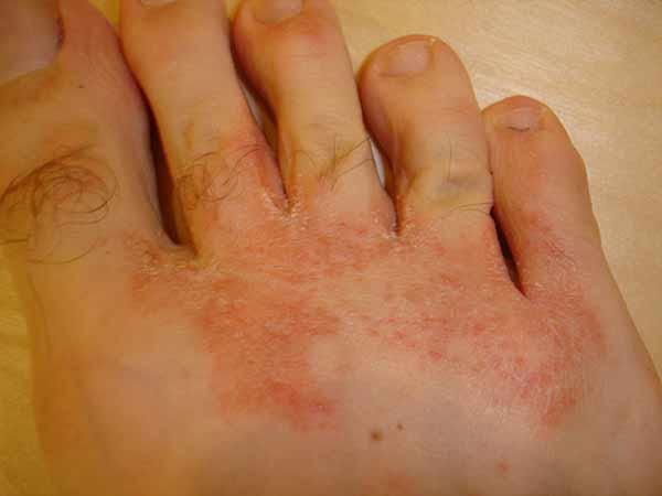 symptomer på fodsvamp