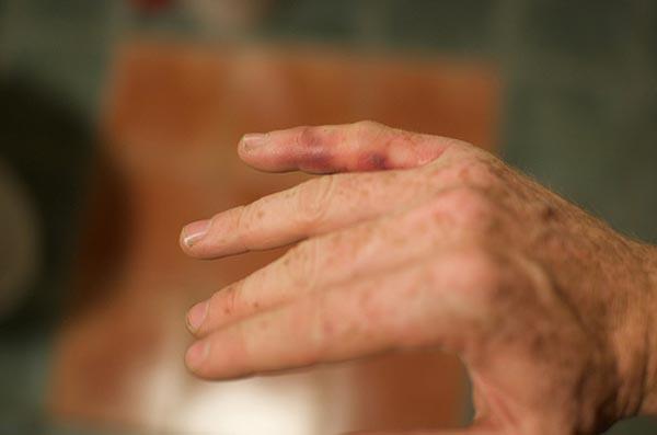 gigt symptomer hænder