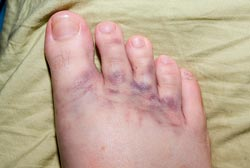 En forstuvet fod