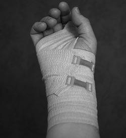 Et forstuvet håndled