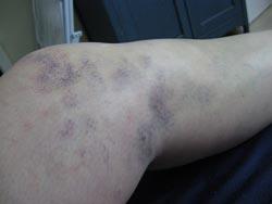Et forstuvet knæ