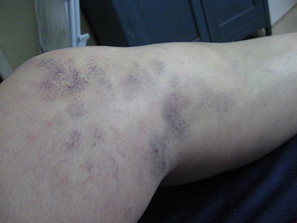 fald direkte på knæ