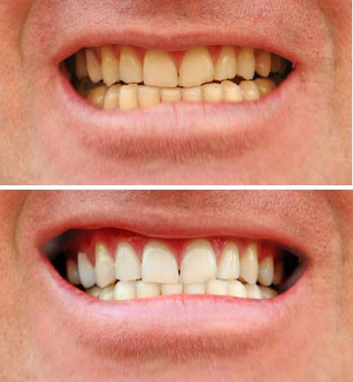 hvide tænder med bagepulver