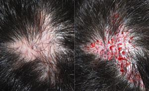 hårtransplantation