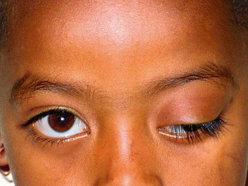 hængende øjenlåg operation