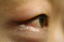 hævede øjenlåg
