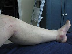 Her ses hævede ben