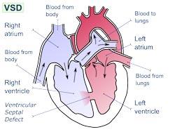 hul i hjertet - ventrikelseptumdefekt