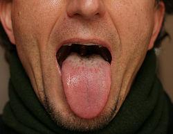 Her ses en belægning på tungen