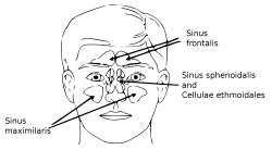 Kæbehulebetændelse opstår i sinus