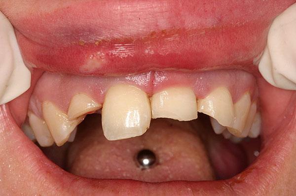 flækket tand pris