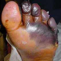 Koldbrand opstået i en fod