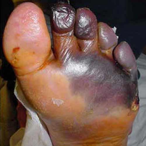 infektion efter operation symptom
