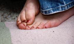 kolde fødder og ben
