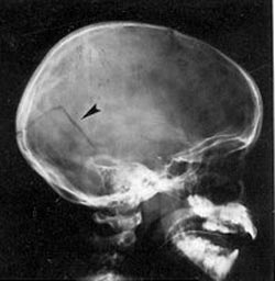 Kraniebrud hos et menneske