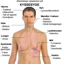 kyssesyge - symptomer