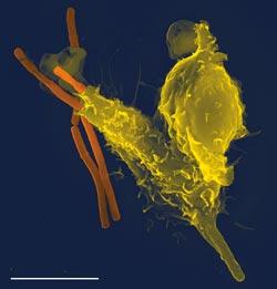 Leukocytter i urin