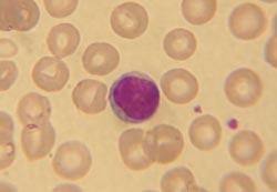 lave leukocytter symptomer
