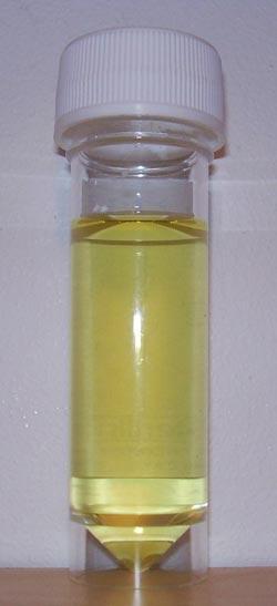 hvit urin