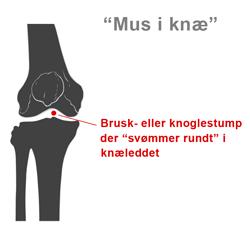Mus i knæ er en knæskade