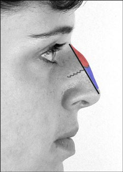 En næsekorrektion