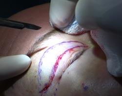 Øjenlågsoperation hos en patient