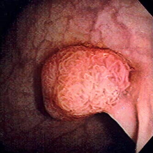 Pictures of anus warts and polyps