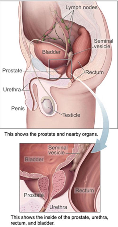 prostatakræft