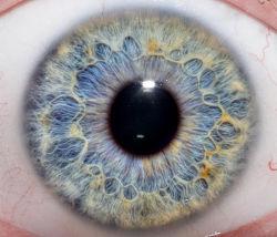 Regnbuehindebetændelse opstår i øjet