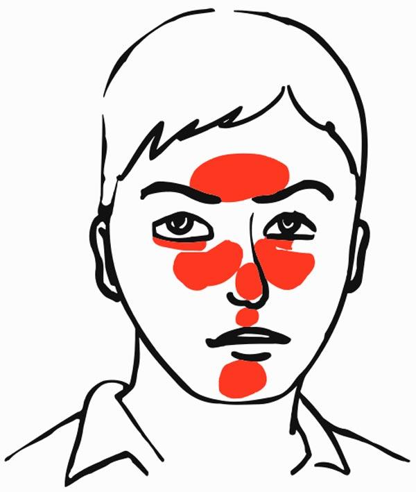 hudlidelse i ansigtet