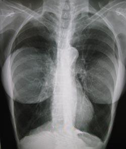 Silikoneimplantater i brysterne