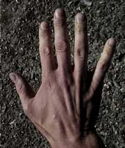 blodprop i finger symptomer
